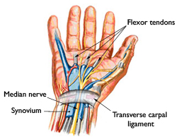 carpal tunnel syndrome treatment louisiana
