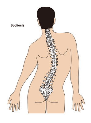 scoliosis treatment louisiana